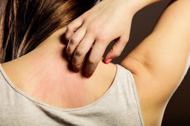 背中が痒い原因とかゆみを抑える対処法!病気の可能性は?